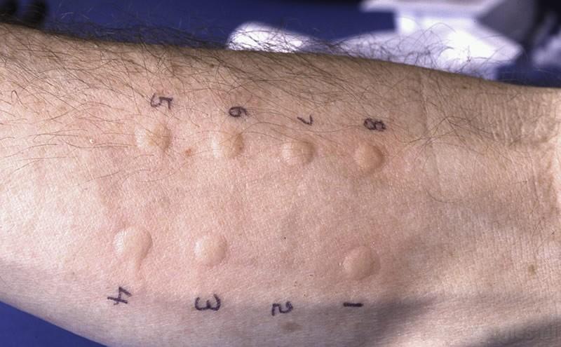прик тест на аллергию
