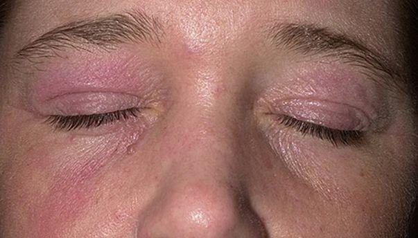 Аллергический дерматит фото у взрослых на шее — Аллергия и я