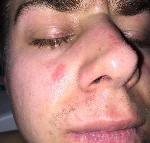 Во сне аллергия означает почти то же самое: неприятие чего-либо, или же чрезмерно выраженную эмоциональную реакцию на какие-либо события, явления или людей.