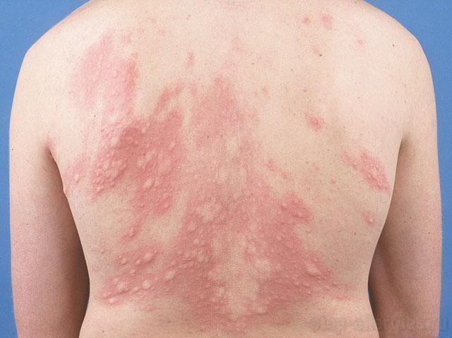 Аллергия на лекарства: фото, симптомы, как выглядят высыпания на коже