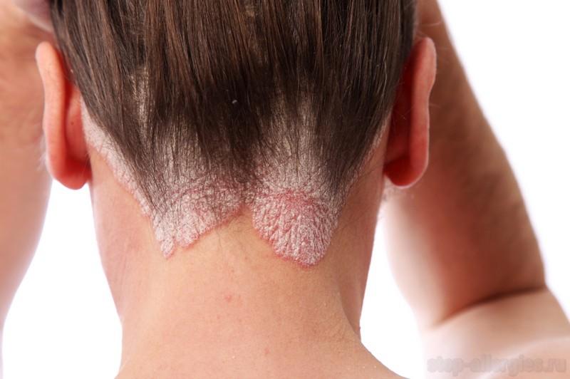Чем красить волосы если аллергия на краску