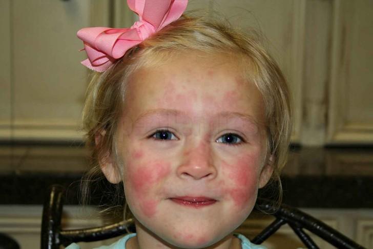 Пищевая и лекарственная аллергия