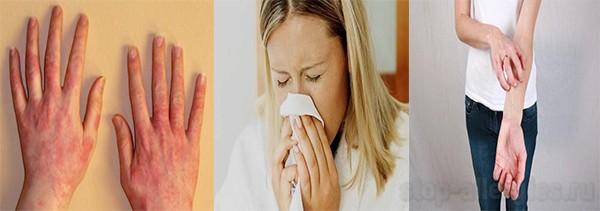 Аллергия на молоко можно ли творог