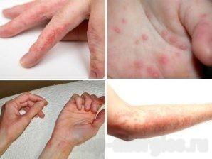 аллергия на внутренней стороне руки