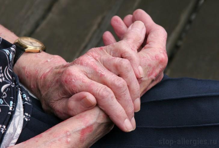 Аллергия на коже рук