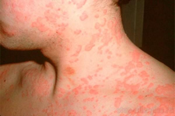 Аллергия на рассаду помидор симптомы у взрослых 25