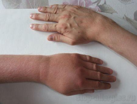 Аллергия на укусы насекомых: описание, течение, симптомы, лечение, профилактика аллергии на укусы насекомых