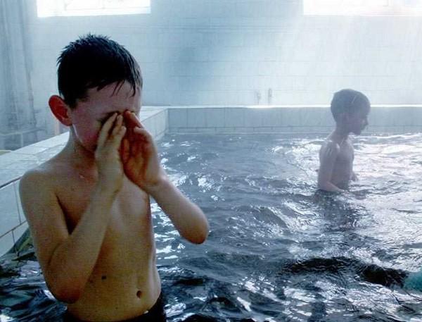 аллергия на горячую воду причины