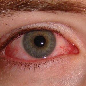 Аллергия проявления - Как вылечить аллергию
