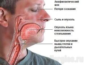 Аптечка при анафилактическом шоке состав - Как вылечить аллергию
