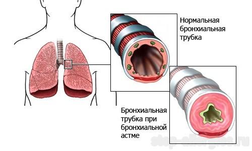 Бронхиальная астма аллергология