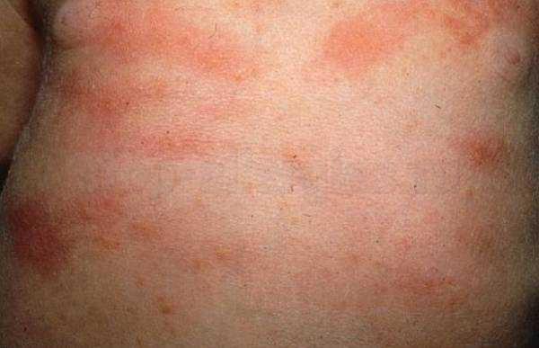 erythema toxicum treatment - 600×387