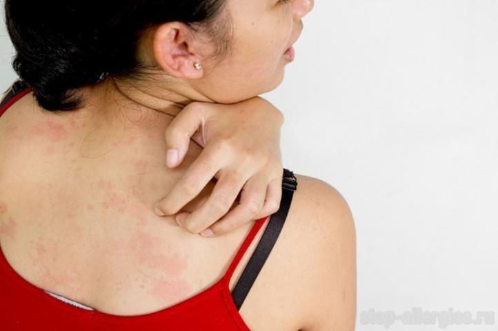 У ребенка аллергия на укусы блох