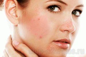 Таблетки от аллергии сыпь на лице
