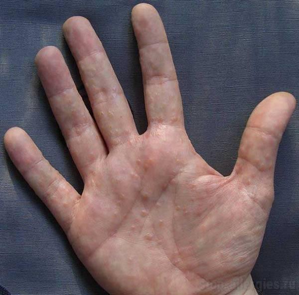 Дисгидрозная экзема кистей рук лечение