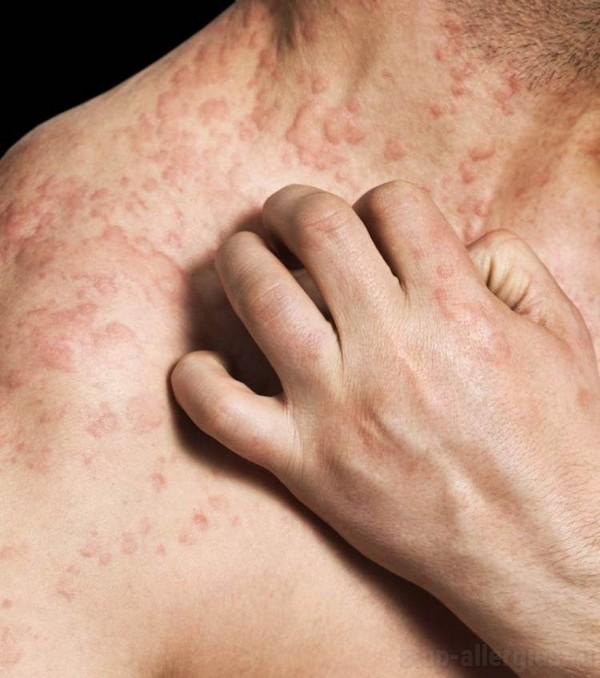 Аллергия на ряженку у взрослого