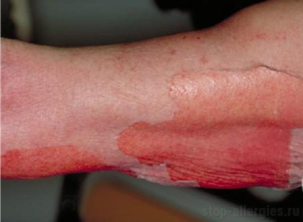 Красные мелкие точки на теле что это такое и как лечить