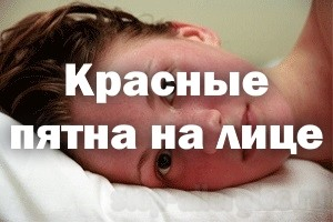 Как убрать на лице красные пятна от аллергии на