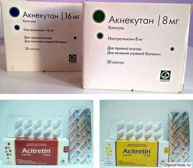 Аллергический псориаз — Аллергия