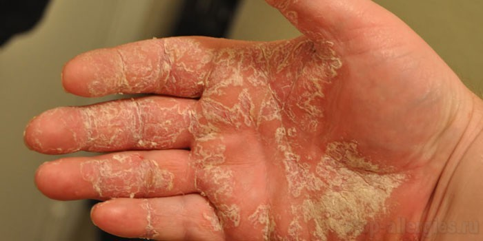 Мокнущая экзема на руках и ногах: лечение и симптомы