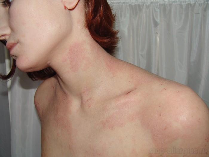аллергия на мед кашель