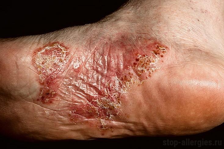 Псориаз подошв и ладоней. Причины формы симптомы и лечение