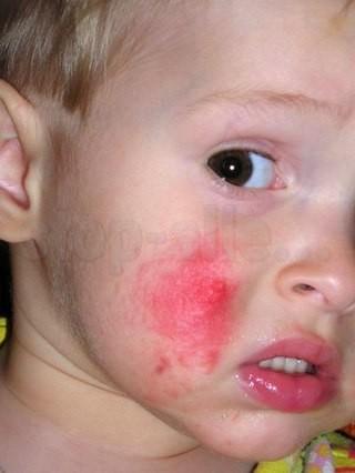 Аллергия на детское питание что делать — Аллергия и все о ней