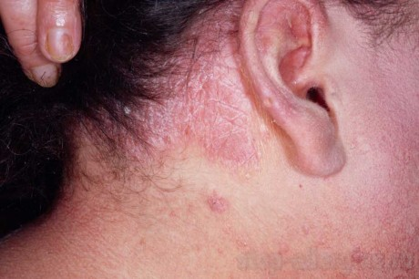 Псориаз сгибательных поверхностей - Как вылечить аллергию
