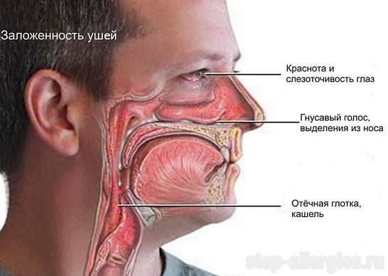 Аллергический конъюнктивит и ринит thumbnail