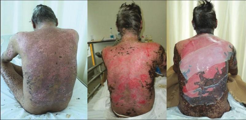 Синдром лайелла причины - Как вылечить аллергию