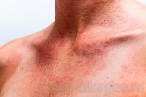 Спрей от аллергии от солнца
