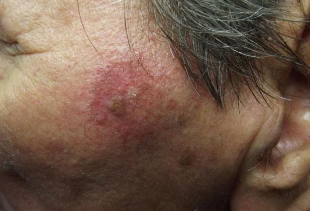 Солнечный дерматит что это и как лечить