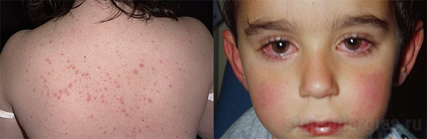 Сколько дней пить супрастин при аллергии взрослым