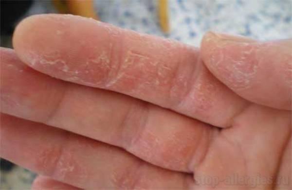как вылечить аллергию псориаз