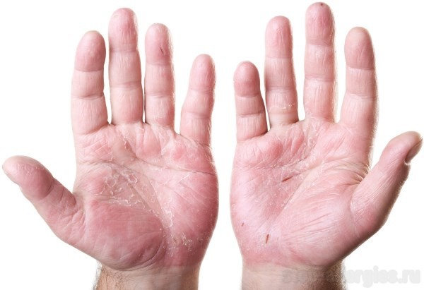 аллергия на коже пузырьки с жидкостью