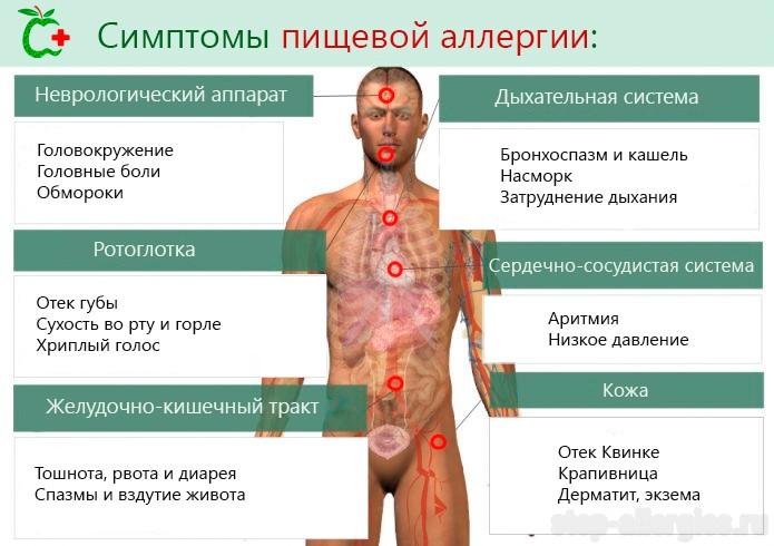 Помощь при аллергии в домашних условиях 926