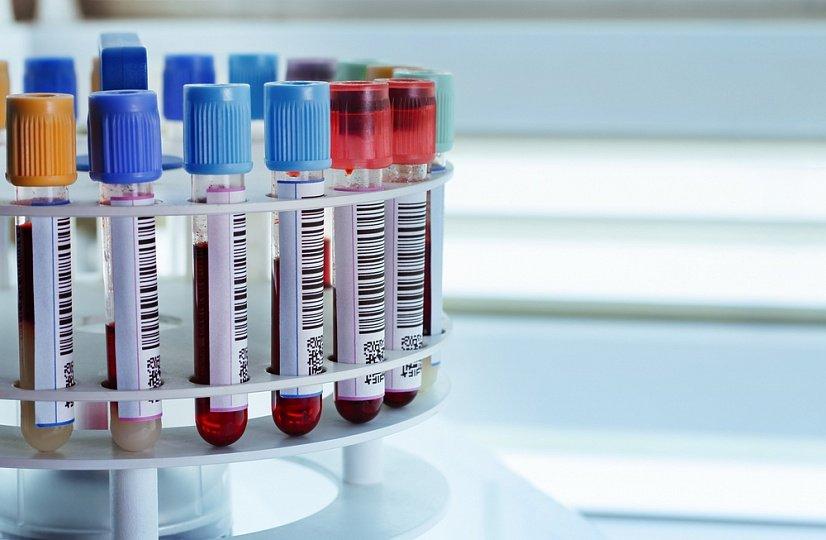 Какие существуют разновидности анализов крови?